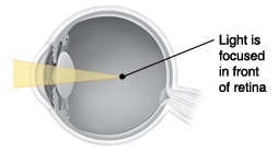 Cross section of eye showing light focusing in front of retina.
