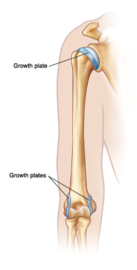 Outline of arm showing upper arm bone. Growth plates are at top of bone near shoulder, and at both sides of bottom of bone near elbow.