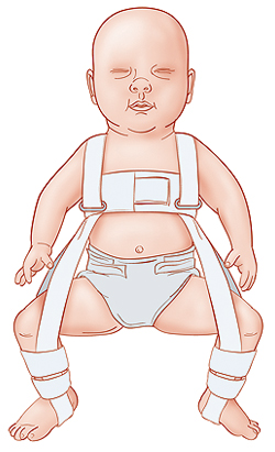 Infant in a harness.