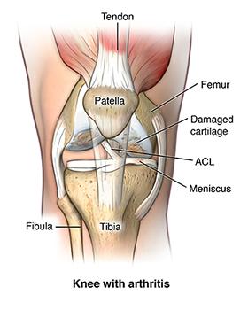 Frente, vista, joelho, mostrando, osteoarthritis