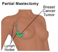 Illustration of a partial mastectomy